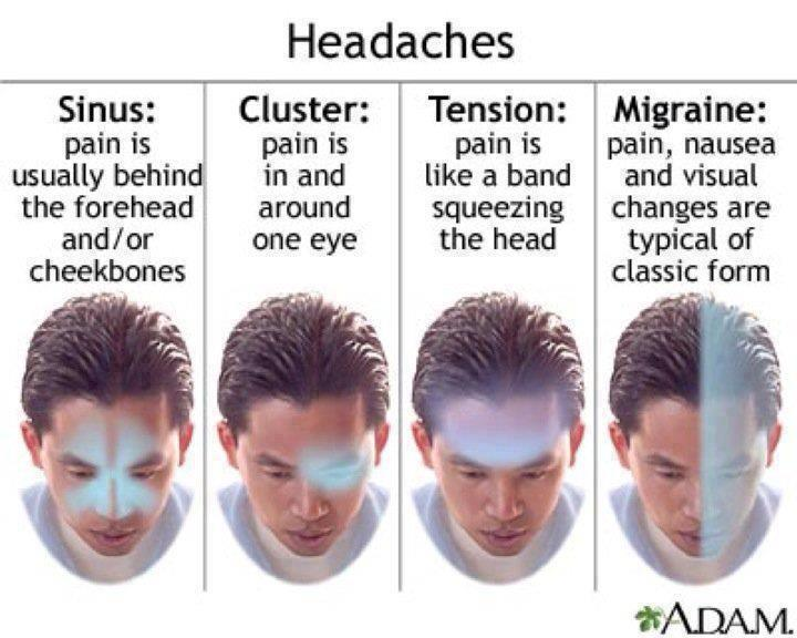 Types of Headaches,Types of ,Headaches,Migraine,tension,cluster